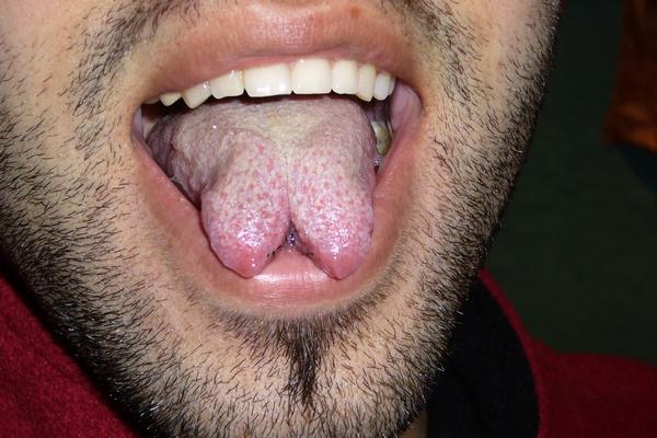 tonguesplit