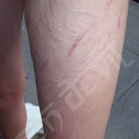 Healed Thigh Scarification, 1 Year Later......